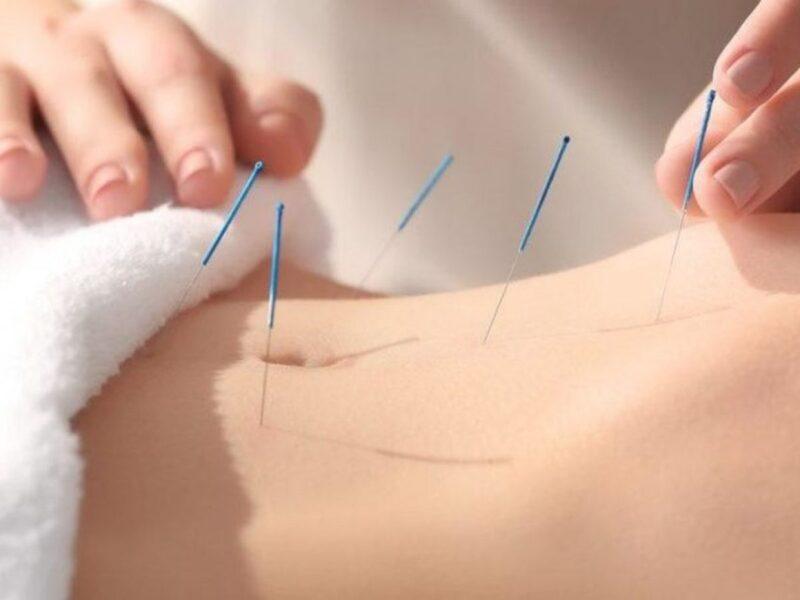 akupunktur-3